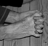 Passive-toe-spreading-1024x987